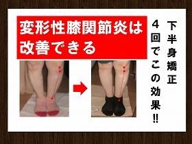 【変形性膝関節炎】.jpg