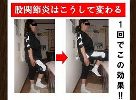 【股関節炎】足があがらない 痛み 改善しない.jpg