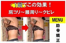 愛知県 豊橋 肋骨矯正 内臓機能 効果 1回.jpg