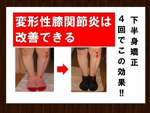 愛知豊橋 ココナッツ 変形性膝関節炎.jpg