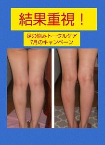 足の悩み7月c.jpg
